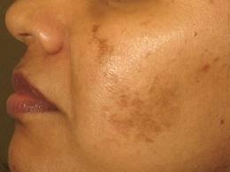 Facial scar with hyperpigmentation.