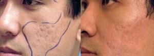 Facial Scar Revision
