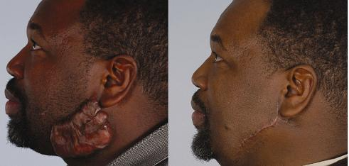 keloid scar steroid injection