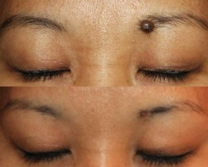 Mole removal in eyebrow results in modest scarring.