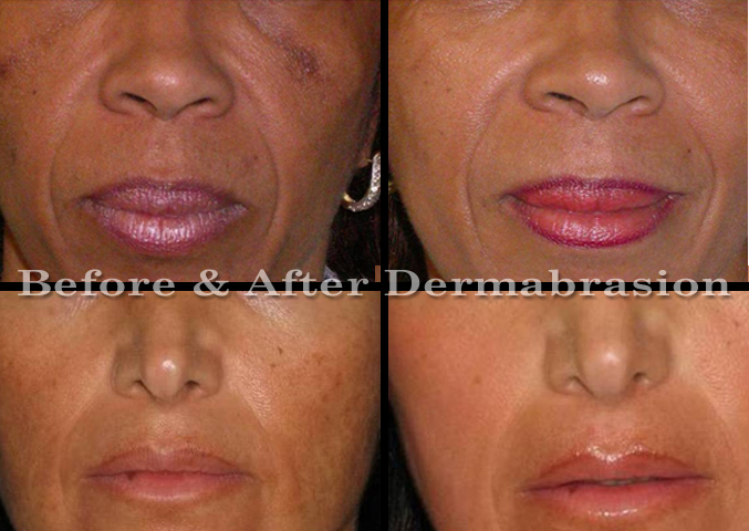 Before and After Dermabrasion Scar Revision