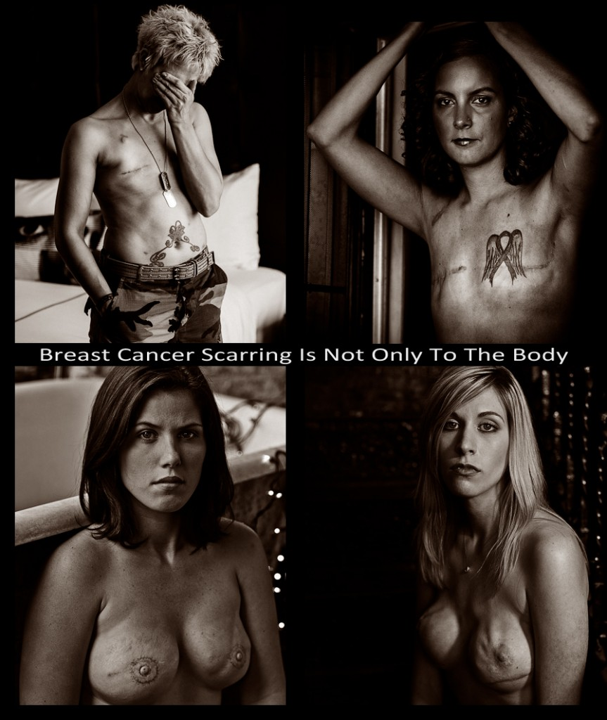 Breast Cancer Scarring Is Not Only To The Body