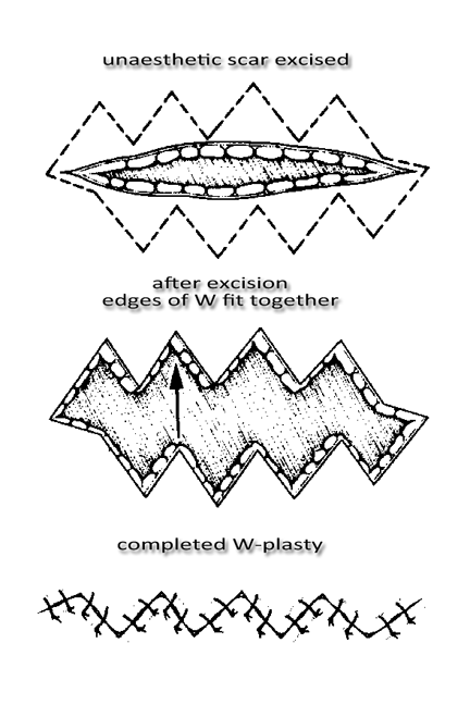W-plasty Diagram