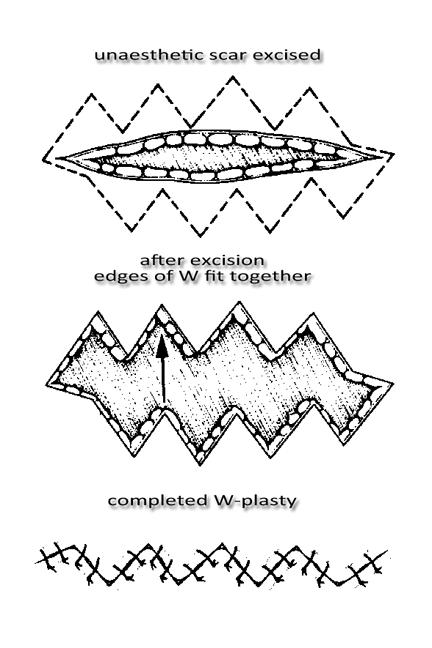 W-plasty Diagram