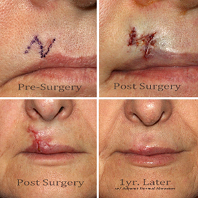 Z-plasty Before & After