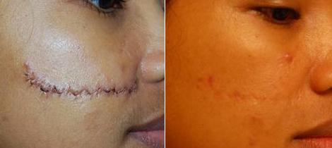 Before and After Facial Scar Revision of Young Woman