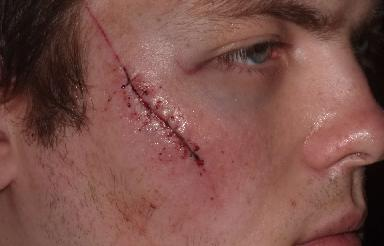 Man with extensive facial scar