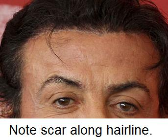 Surgical scar from cosmetic procedure are often hidden aroun the hairline.