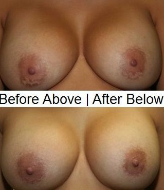 Breast Scars Revision