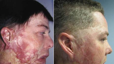 Man's severe burn scar revised