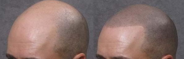 Scalp Micro-pigmentation is used to simulate stubble hair making it also good for obscuring scars.
