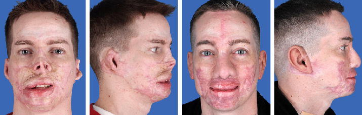 Wounded Soldier Facial Reconstruction