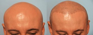 SMP Before and After Procedure