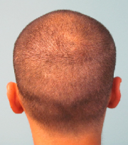 One Week After FUE Transplant Performed by Doctor Parsa Mohebi