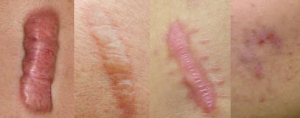 Different forms of scarring