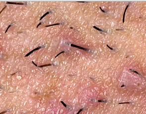 Ingrown hair on leg