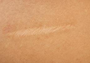 Pale scar