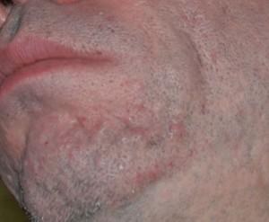 Facial Scar Removal