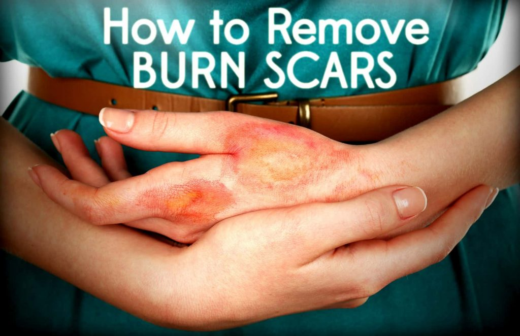 Getting Rid of Burn Scars