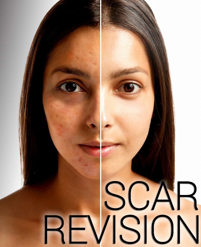 How Can I Treat Scars?