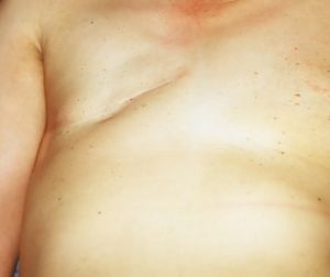 Surgical scar after breast surgery
