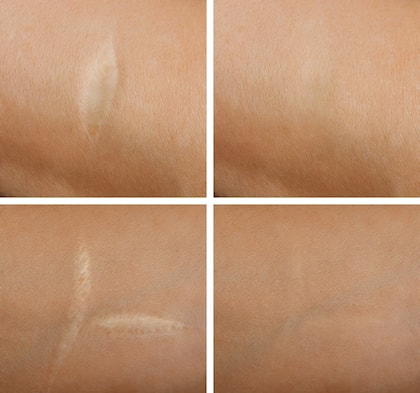 Methods to treat different scars